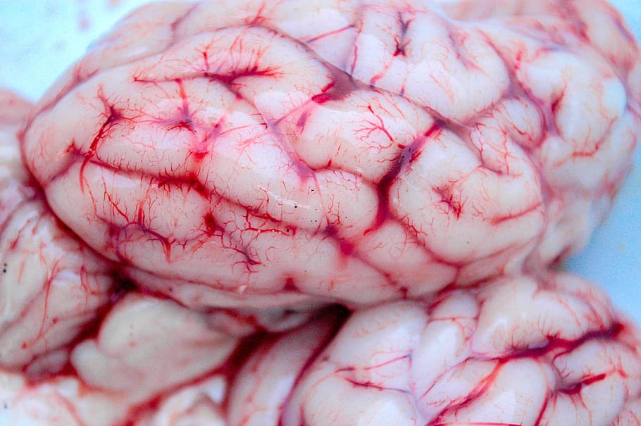 Brain anatomy image for accident victims