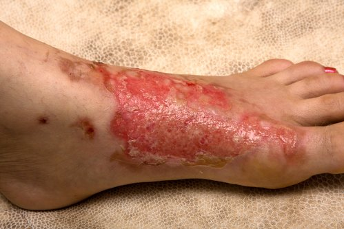 Thumbnail image for Burn Injury Pathophysiology - A Legal Perspective
