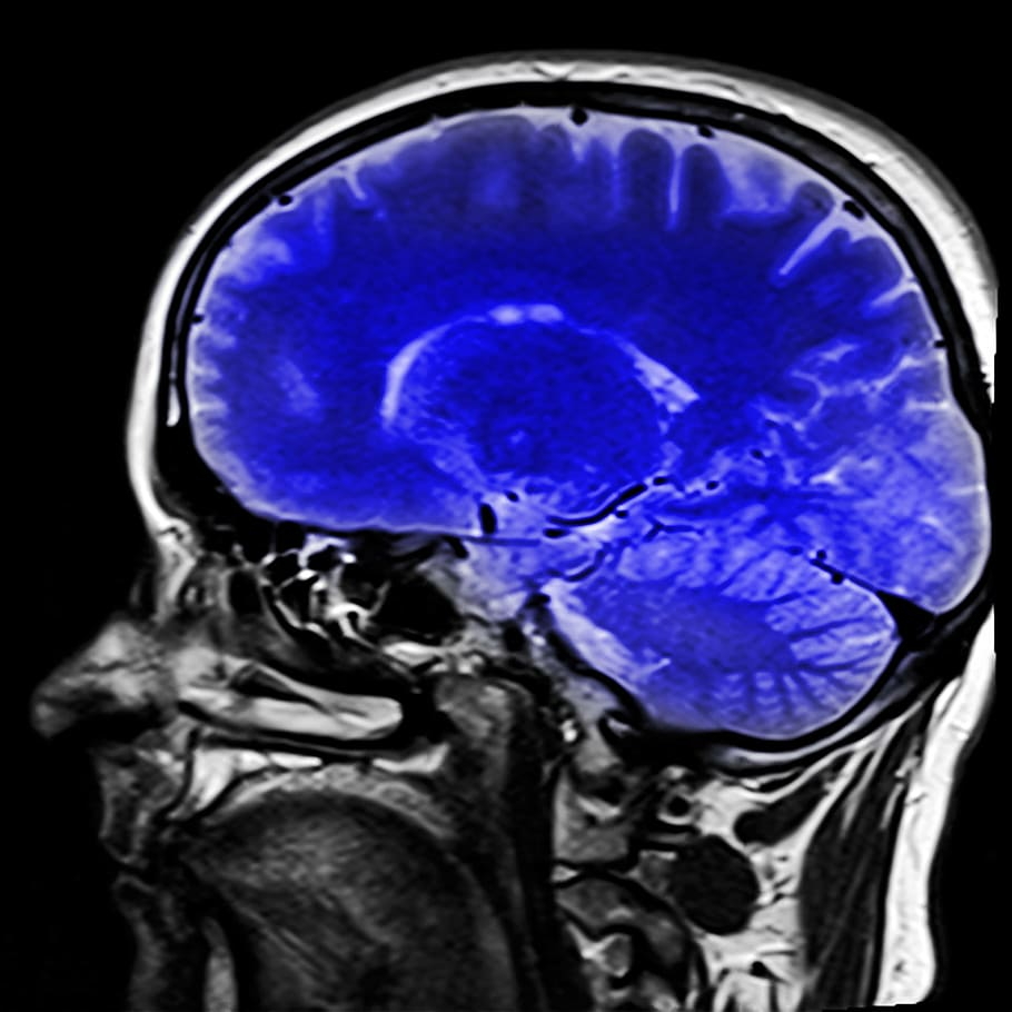 Thumbnail image for Can My Traumatic Brain Injury Self Heal? Examples and Explanations