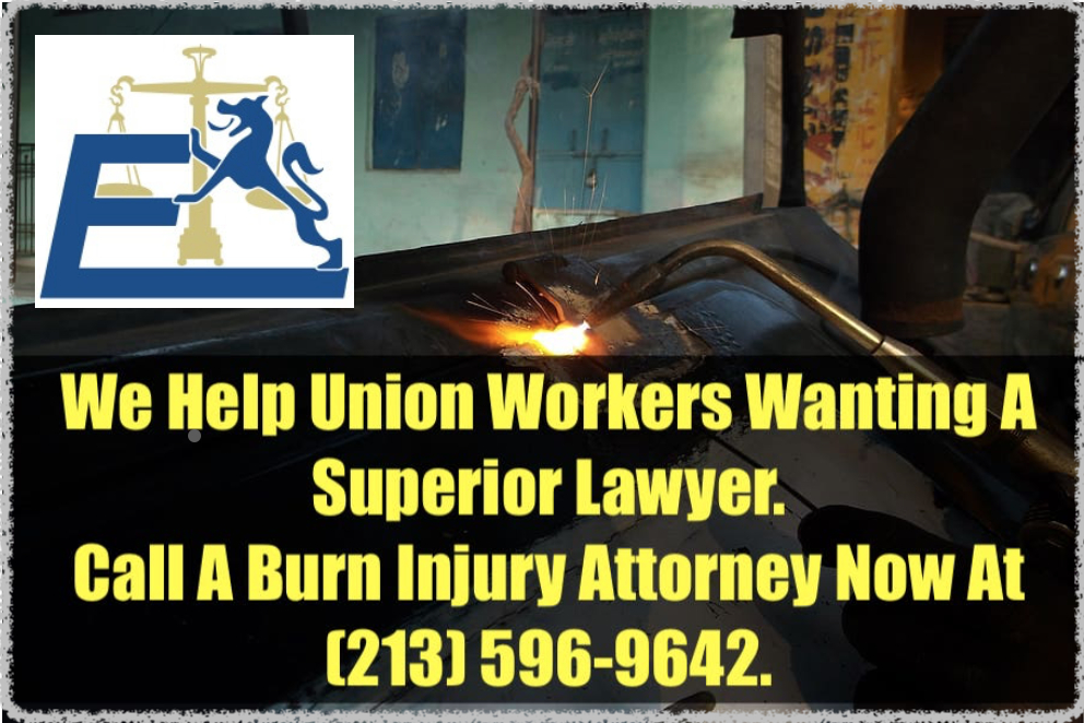 Union worker burns injury attorneys are here to help!